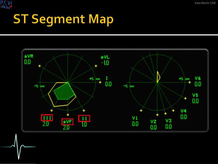 ST Segment Map
