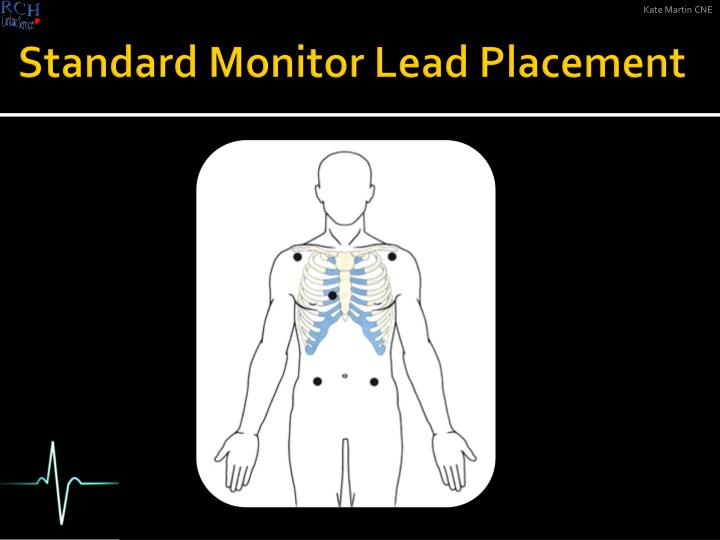 Standard Monitor Lead Placement