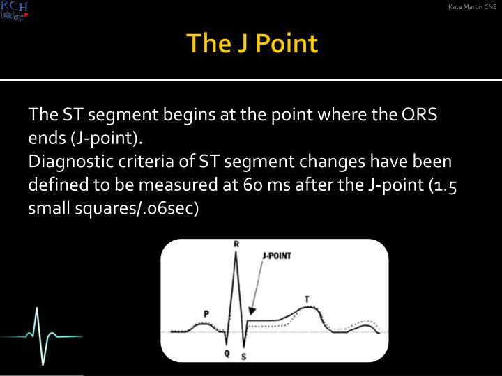 The J Point