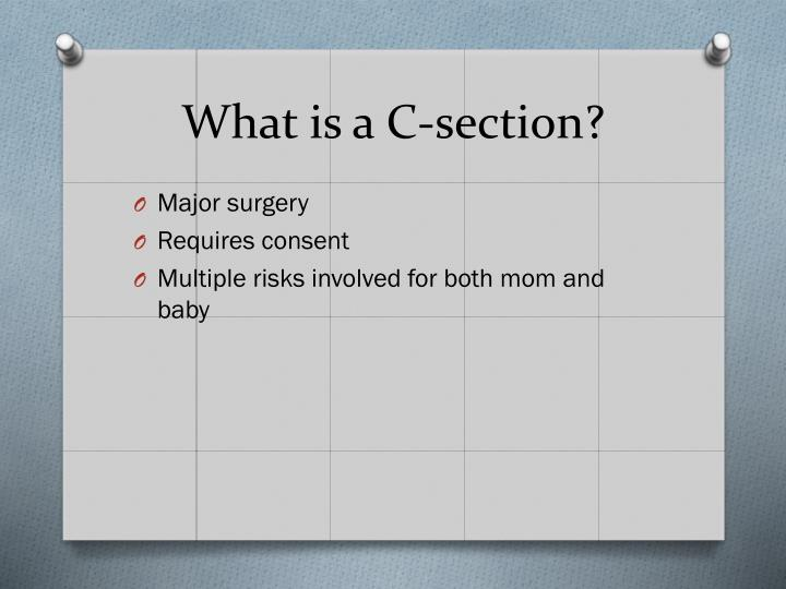 What is a C-section?