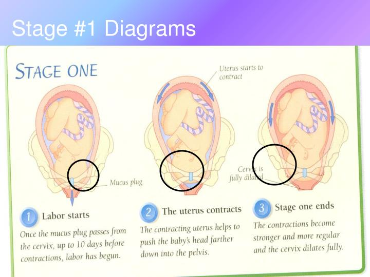 Stage #1 Diagrams