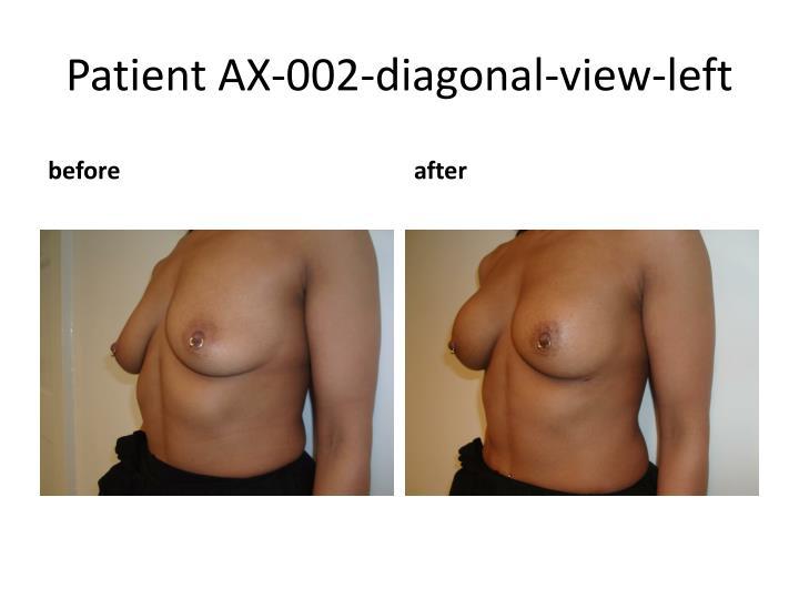 Patient AX-002-diagonal-view-left