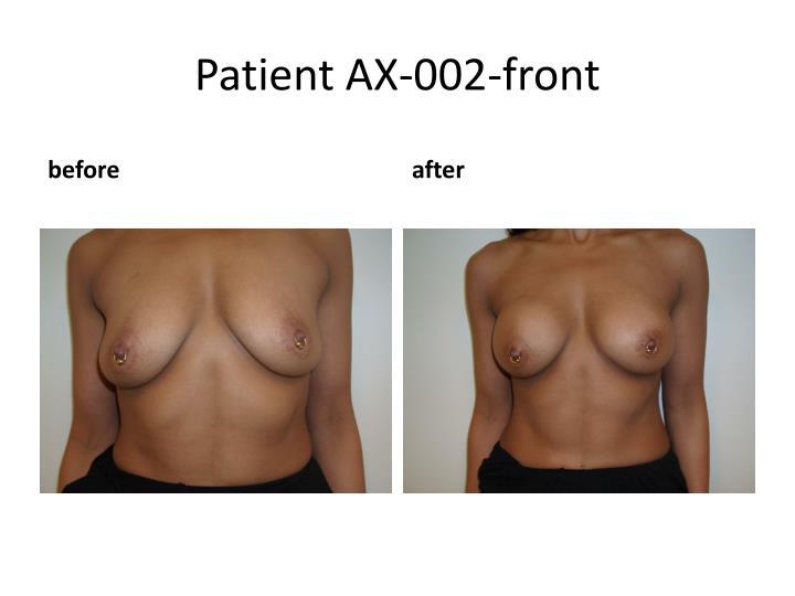 Patient AX-002-front