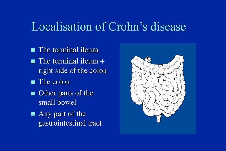 Localisation of Crohn's disease