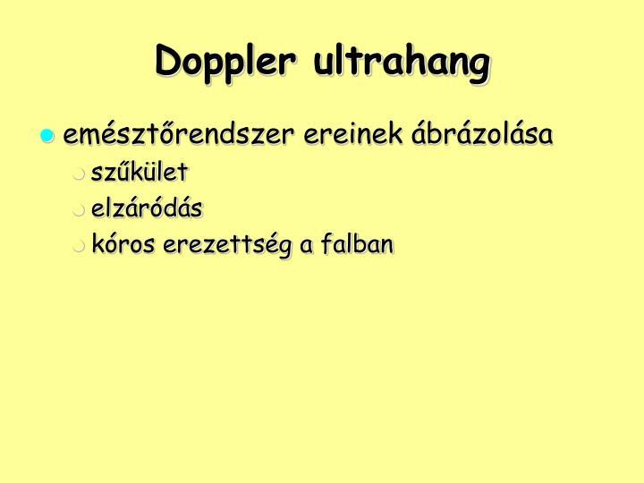 Doppler ultrahang