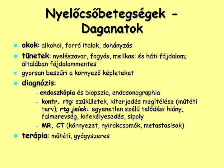 Nyelőcsőbetegségek - Daganatok