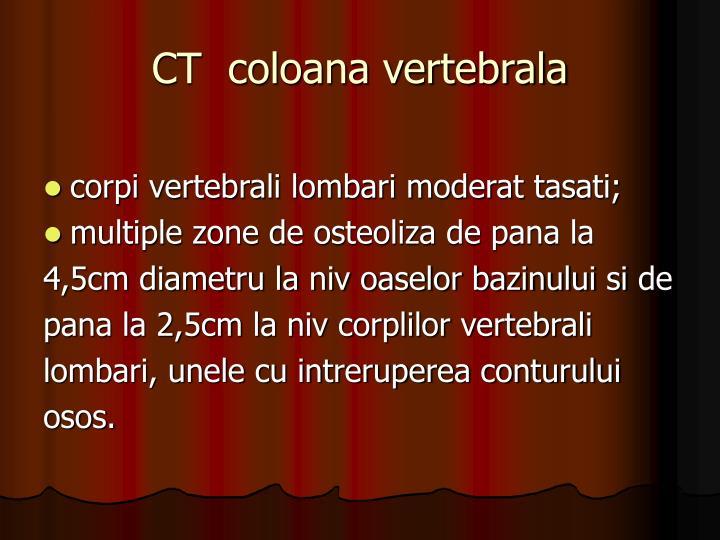 CT  coloana vertebrala
