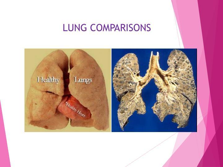 LUNG COMPARISONS