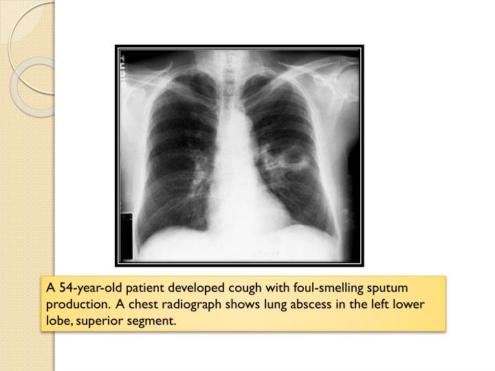 A 54-year-old patient developed cough with foul-smelling sputum production.  A chest radiograph shows lung abscess in the left lower lobe, superior segment.