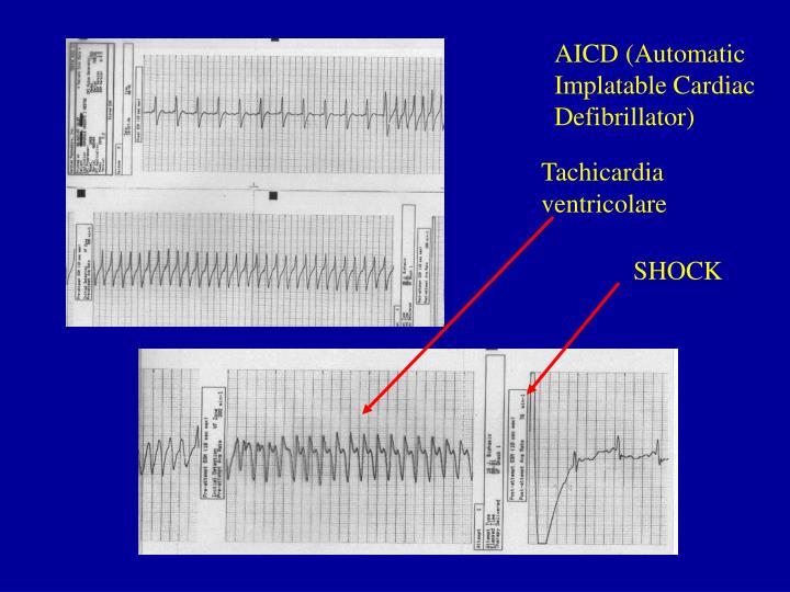 AICD (Automatic Implatable Cardiac Defibrillator)