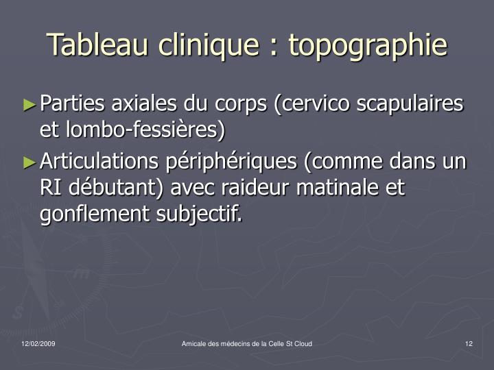 Tableau clinique : topographie
