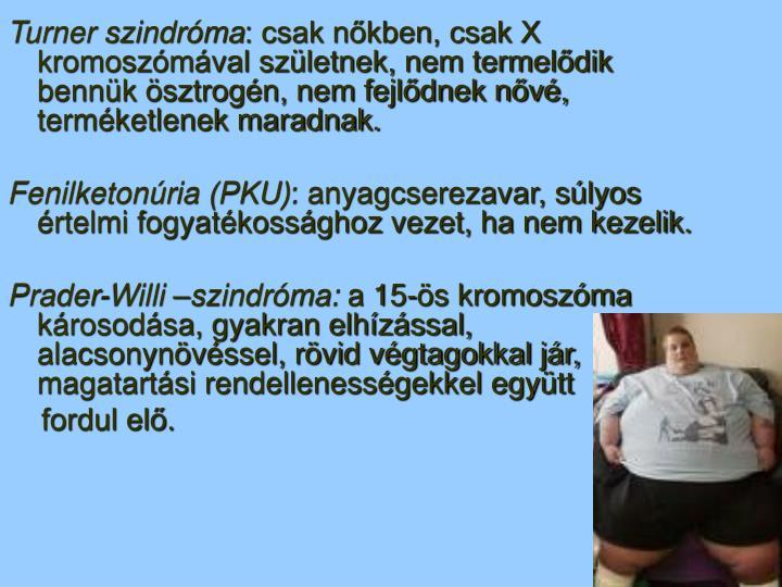 Turner szindróma