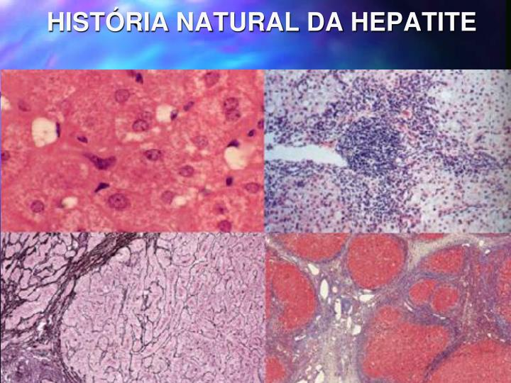 HISTÓRIA NATURAL DA HEPATITE