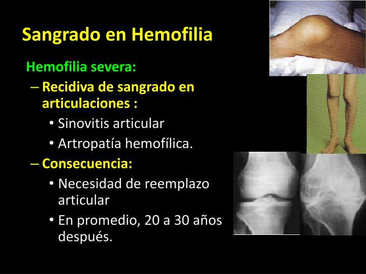 Sangrado en Hemofilia