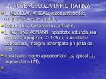 2 tuberculoza infiltrativa1