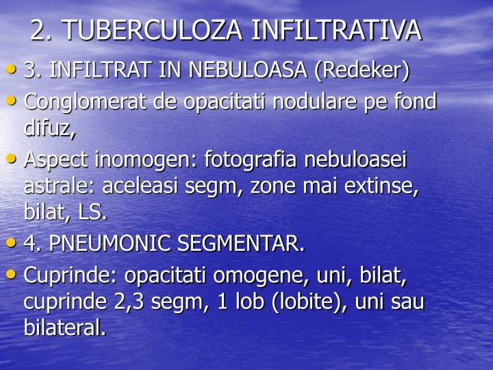 2. TUBERCULOZA INFILTRATIVA