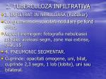2 tuberculoza infiltrativa2