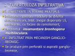 2 tuberculoza infiltrativa3