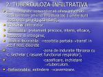 2 tuberculoza infiltrativa4