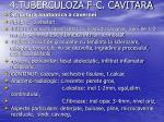 4 tuberculoza f c cavitara1