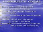 4 tuberculoza f c cavitara2