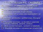 4 tuberculoza f c cavitara7