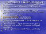 6 tuberculoza traheo bronsica
