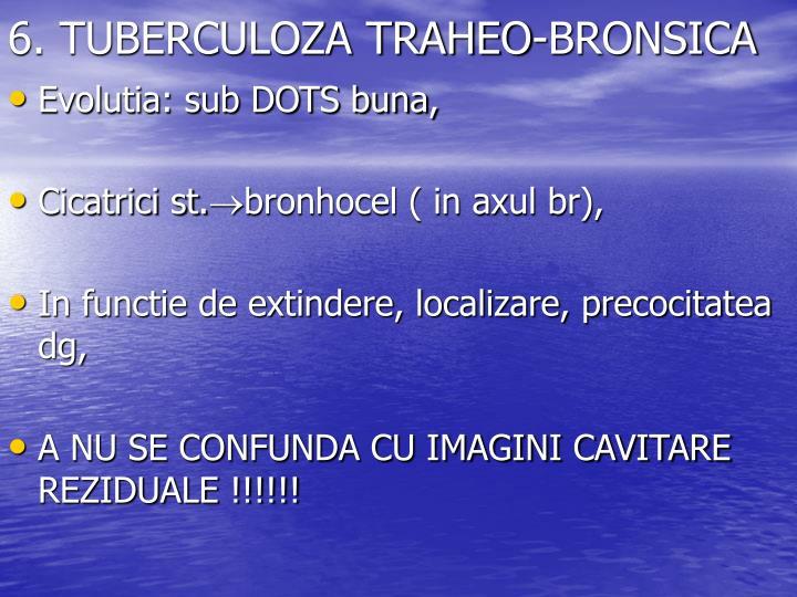 6. TUBERCULOZA TRAHEO-BRONSICA