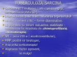 tuberculoza sarcina1