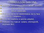 tuberculoza sarcina2