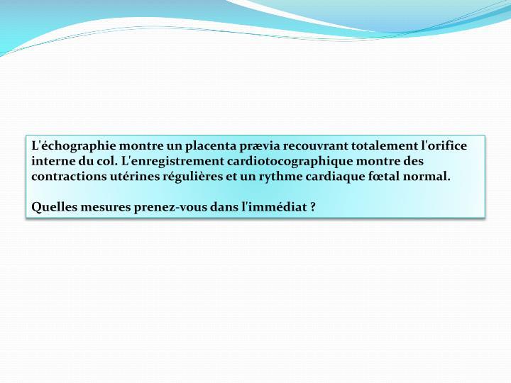 L'échographie montre un placenta