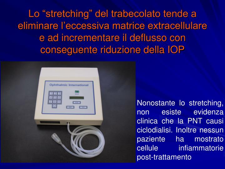 """Lo """"stretching"""" del trabecolato tende a eliminare l'eccessiva matrice extracellulare e ad incrementare il deflusso con conseguente riduzione della IOP"""