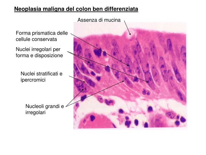 Neoplasia maligna del colon ben differenziata