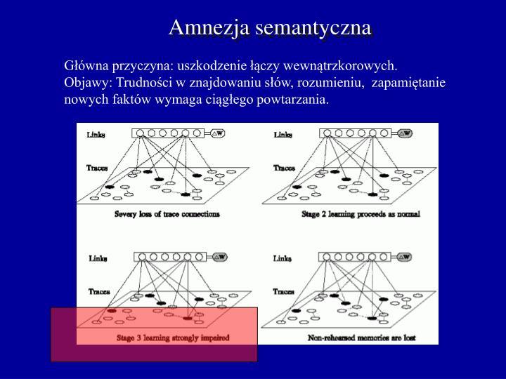Amnezja semantyczna
