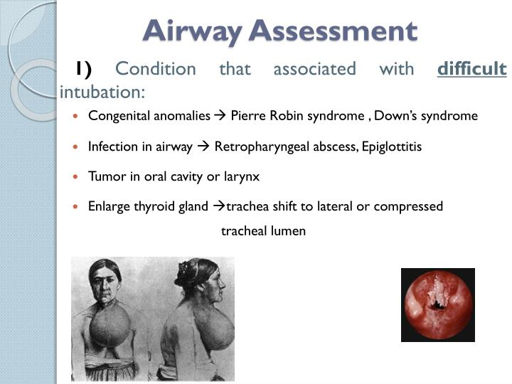 Airway Assessment