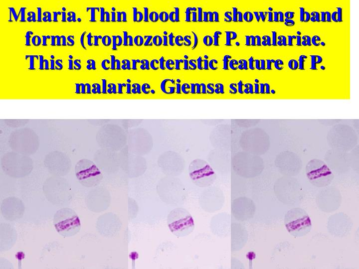 Malaria. Thin blood film showing band forms (trophozoites) of P. malariae. This is a characteristic feature of P. malariae. Giemsa stain.