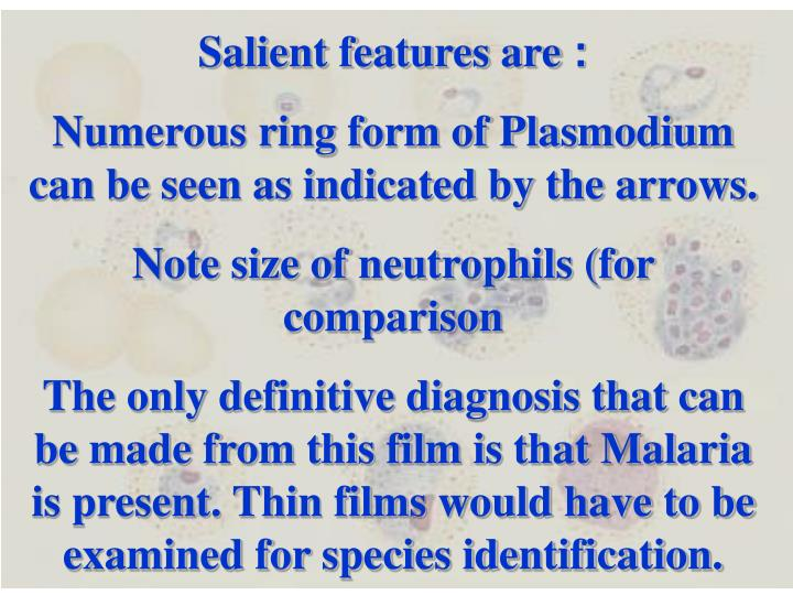 Salient features are