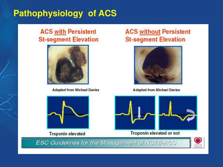 Pathophysiology  of ACS