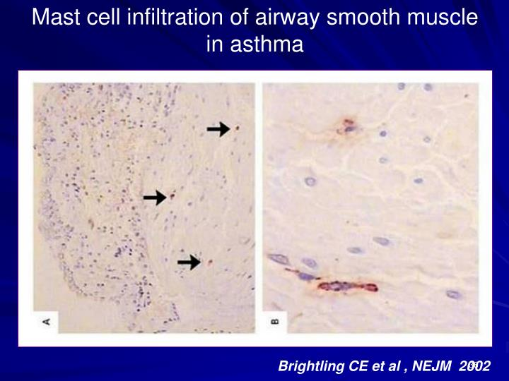 Mast cell infiltration of airway smooth muscle in asthma