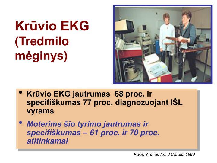 Krūvio EKG
