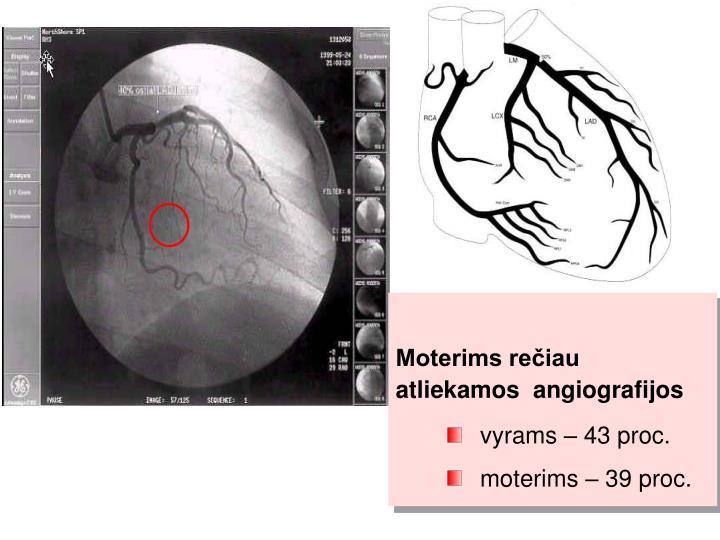 Moterims rečiau atliekamos  angiografijos