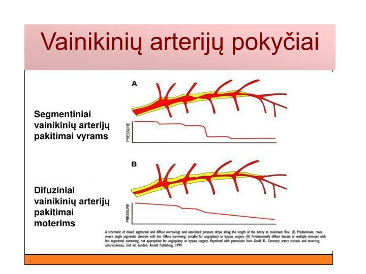 Segmentiniai vainikinių arterijų pakitimai vyrams