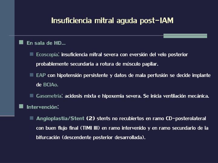 Insuficiencia mitral aguda post-IAM