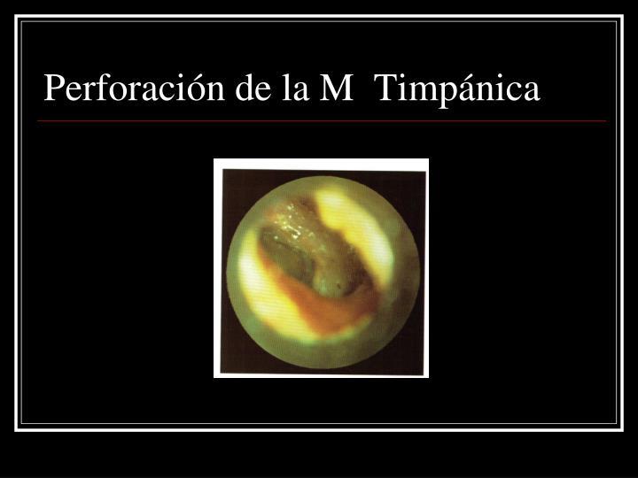 Perforación de la M  Timpánica