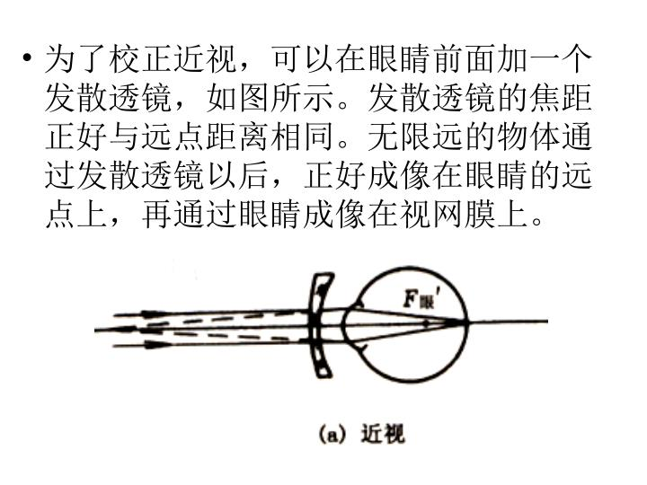为了校正近视,可以在眼睛前面加一个发散透镜,如图所示。发散透镜的焦距正好与远点距离相同。无限远的物体通过发散透镜以后,正好成像在眼睛的远点上,再通过眼睛成像在视网膜上。