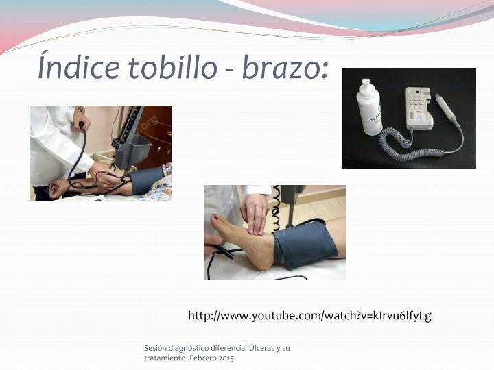 Índice tobillo - brazo:
