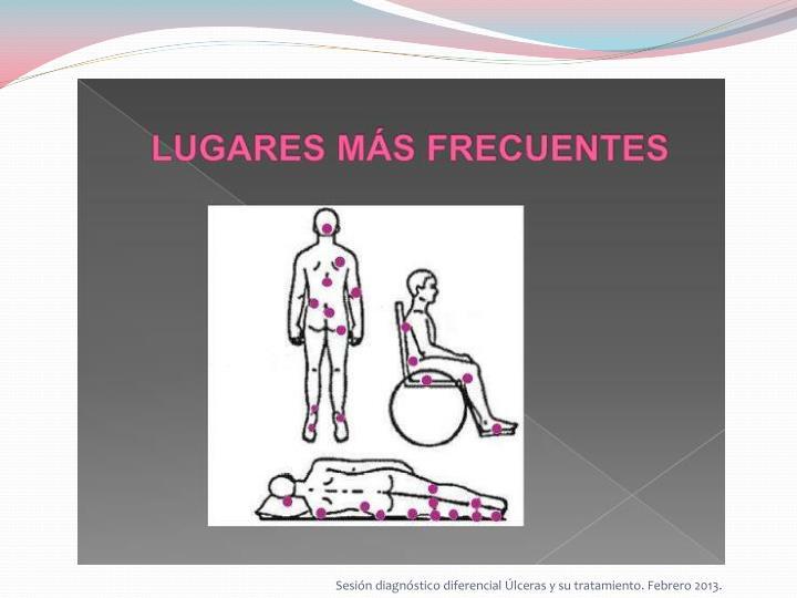 Sesión diagnóstico diferencial Úlceras y su tratamiento. Febrero 2013.
