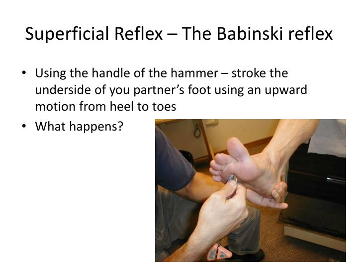 Superficial Reflex – The Babinski reflex