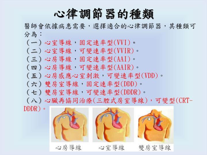 心律調節器的種類