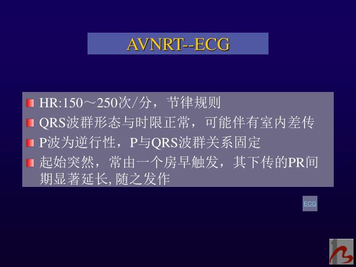 AVNRT--ECG